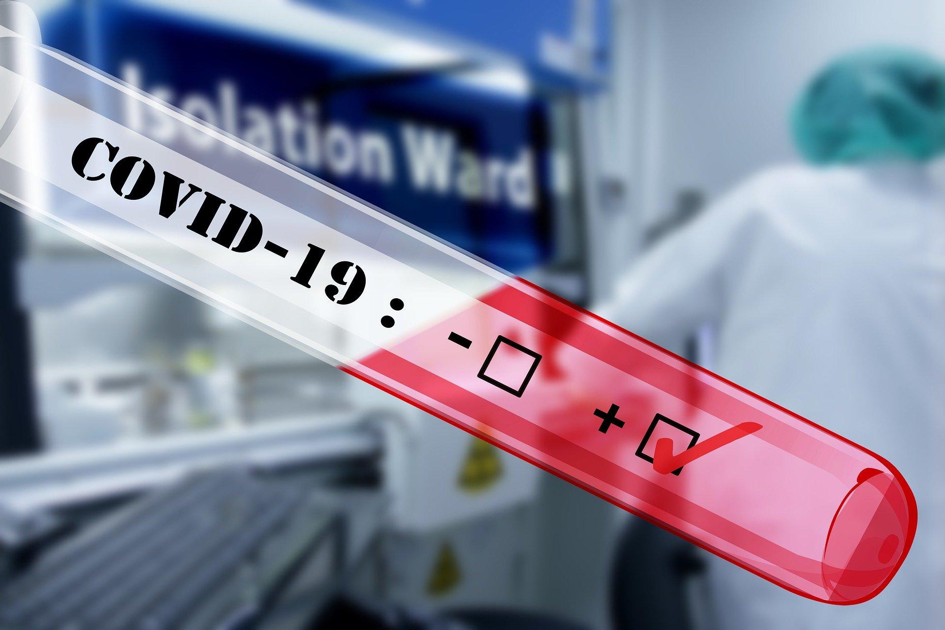Kurumlar bünyesinde Korono Virüs (Covid 19)  Sağlık Taramalarının KVKK Uyumu